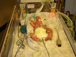 Baby in a hospital cot, covered in wires and tubes. Just can't let go
