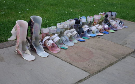 A line of ankle-foot orthoses and dynamic ankle-foot orthoses. It's the end of an era